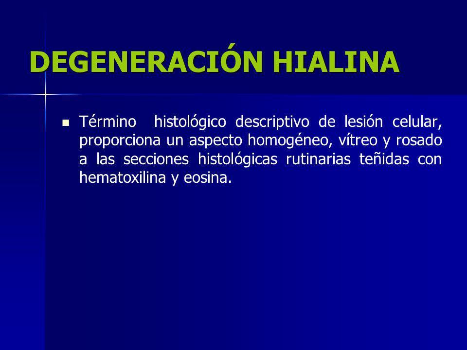 DEGENERACIÓN HIALINA Término histológico descriptivo de lesión celular, proporciona un aspecto homogéneo, vítreo y rosado a las secciones histológicas