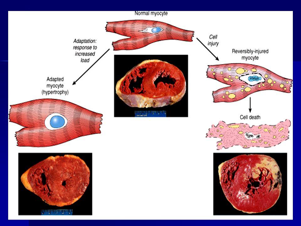 ESTRESS Demanda funcional aumentada Demanda funcional aumentada Lesión Celular reversible Lesión Celular reversible ADAPTACIÓN Estrés persistente Leve Lesión celular irreversible Atrofía Metaplasia Displasia.