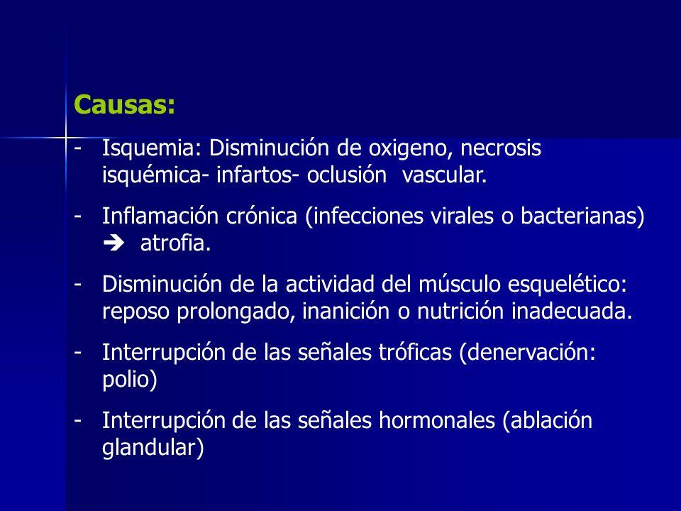 Ejemplos: -Hipófisis anulada TSH – ACTH – FSH insuficientes.