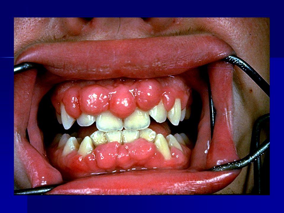 2.Metaplasias mesenquimales: Metaplasia cartilaginosa: En cicatrices y en seudoartrosis.