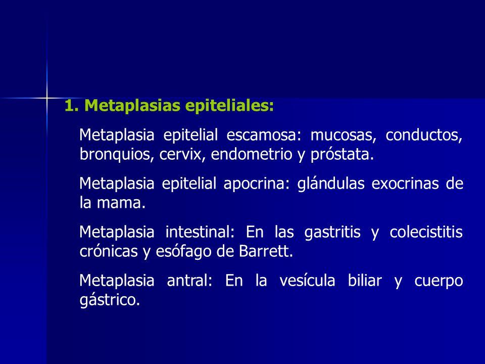1. Metaplasias epiteliales: Metaplasia epitelial escamosa: mucosas, conductos, bronquios, cervix, endometrio y próstata. Metaplasia epitelial apocrina