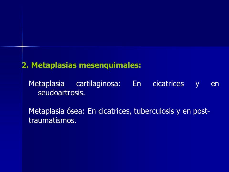 2. Metaplasias mesenquimales: Metaplasia cartilaginosa: En cicatrices y en seudoartrosis. Metaplasia ósea: En cicatrices, tuberculosis y en post- trau
