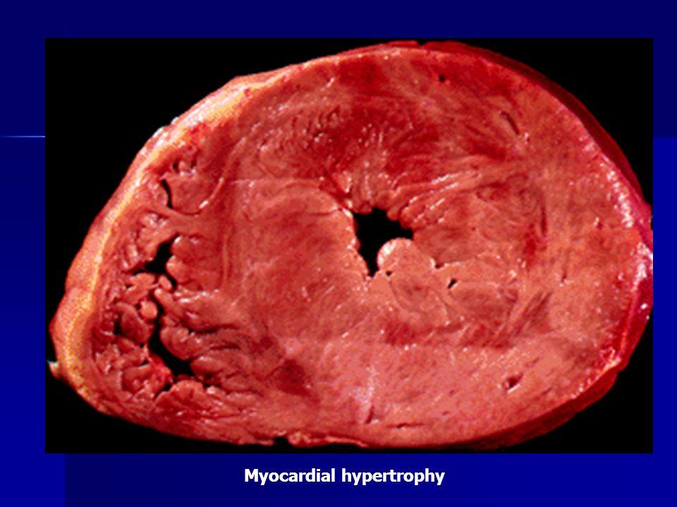 Myocardial hypertrophy