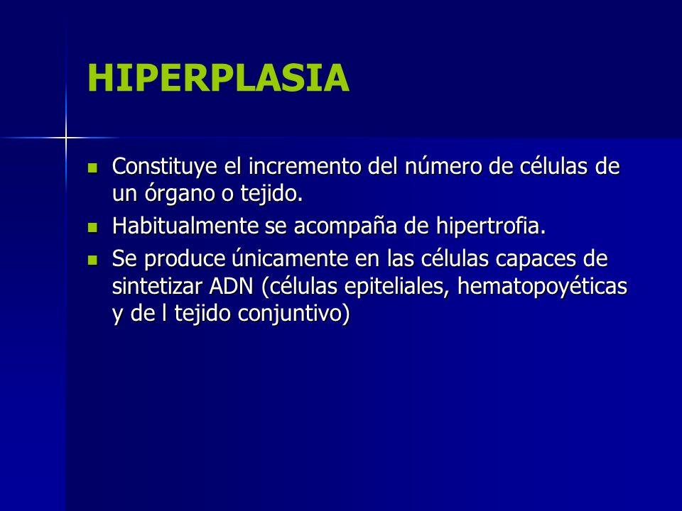 Tipos de hiperplasia HIPERPLASIA FISIOLÓGICA Estimulación hormonal Compensadora MECANISMOS: Acción combinada de factores de crecimiento α, citocinas (TNF α e IL 6).