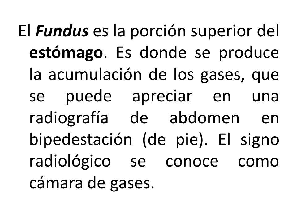El Fundus es la porción superior del estómago. Es donde se produce la acumulación de los gases, que se puede apreciar en una radiografía de abdomen en