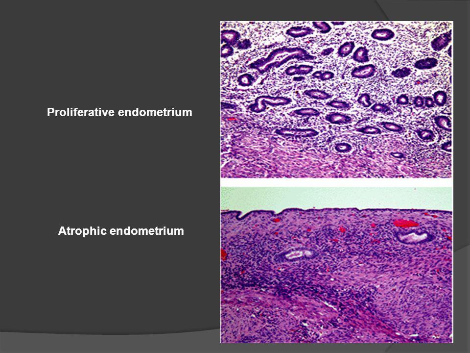 Proliferative endometrium Atrophic endometrium
