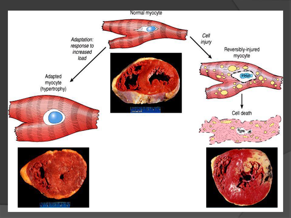 ADAPTACIÓN CELULAR ESTRESS Demanda funcional aumentada Demanda funcional aumentada Lesión Celular reversible Lesión Celular reversible ADAPTACIÓN Estrés persistente Leve Lesión celular irreversible Atrofía Metaplasia Displasia.
