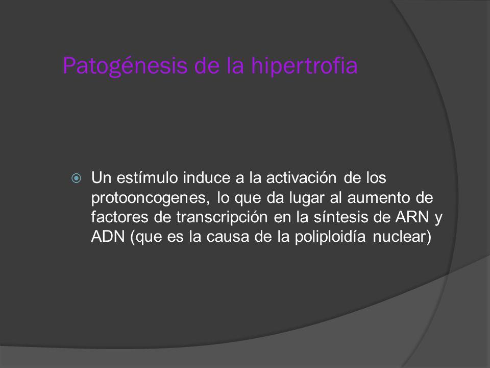 Patogénesis de la hipertrofia Un estímulo induce a la activación de los protooncogenes, lo que da lugar al aumento de factores de transcripción en la