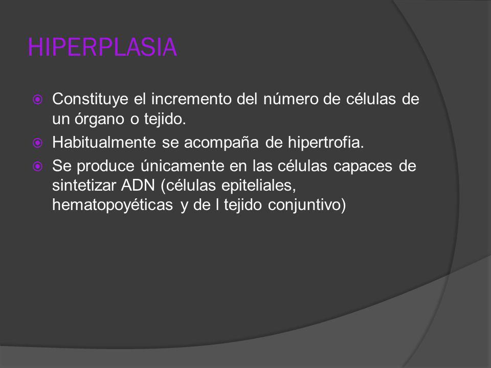 Constituye el incremento del número de células de un órgano o tejido. Habitualmente se acompaña de hipertrofia. Se produce únicamente en las células c