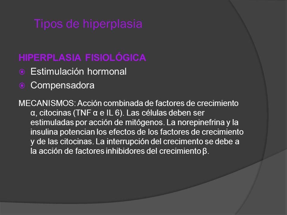 Tipos de hiperplasia HIPERPLASIA FISIOLÓGICA Estimulación hormonal Compensadora MECANISMOS: Acción combinada de factores de crecimiento α, citocinas (