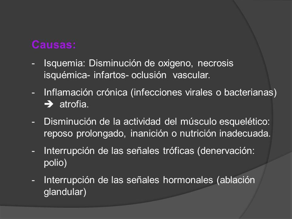 Causas: -Isquemia: Disminución de oxigeno, necrosis isquémica- infartos- oclusión vascular. -Inflamación crónica (infecciones virales o bacterianas) a