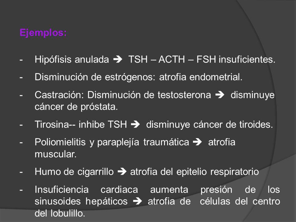 Ejemplos: -Hipófisis anulada TSH – ACTH – FSH insuficientes. -Disminución de estrógenos: atrofia endometrial. -Castración: Disminución de testosterona