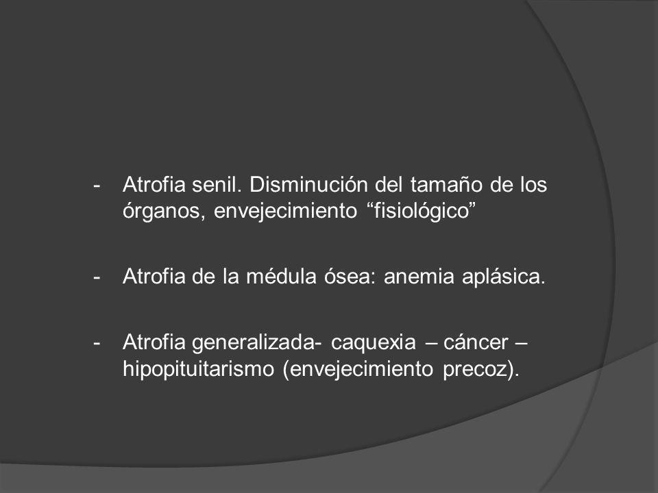 -Atrofia senil. Disminución del tamaño de los órganos, envejecimiento fisiológico -Atrofia de la médula ósea: anemia aplásica. -Atrofia generalizada-