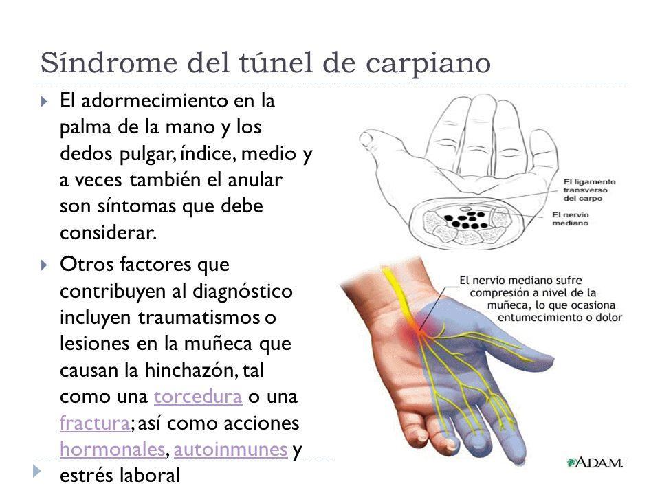 Síndrome del túnel de carpiano El adormecimiento en la palma de la mano y los dedos pulgar, índice, medio y a veces también el anular son síntomas que