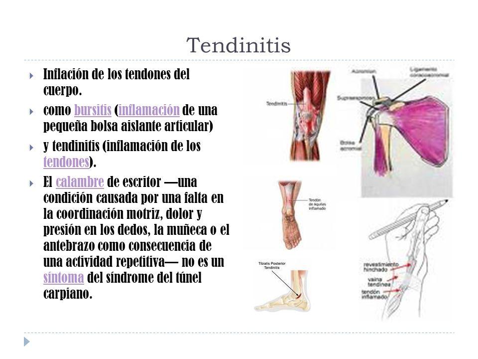 Tendinitis Inflación de los tendones del cuerpo. como bursitis (inflamación de una pequeña bolsa aislante articular)bursitisinflamación y tendinitis (