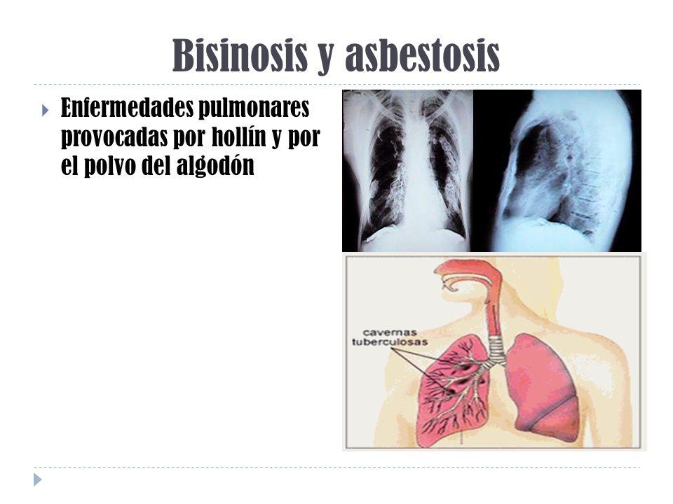 Bisinosis y asbestosis Enfermedades pulmonares provocadas por hollín y por el polvo del algodón