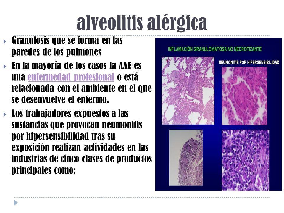 alveolitis alérgica Granulosis que se forma en las paredes de los pulmones En la mayoría de los casos la AAE es una enfermedad profesional o está rela