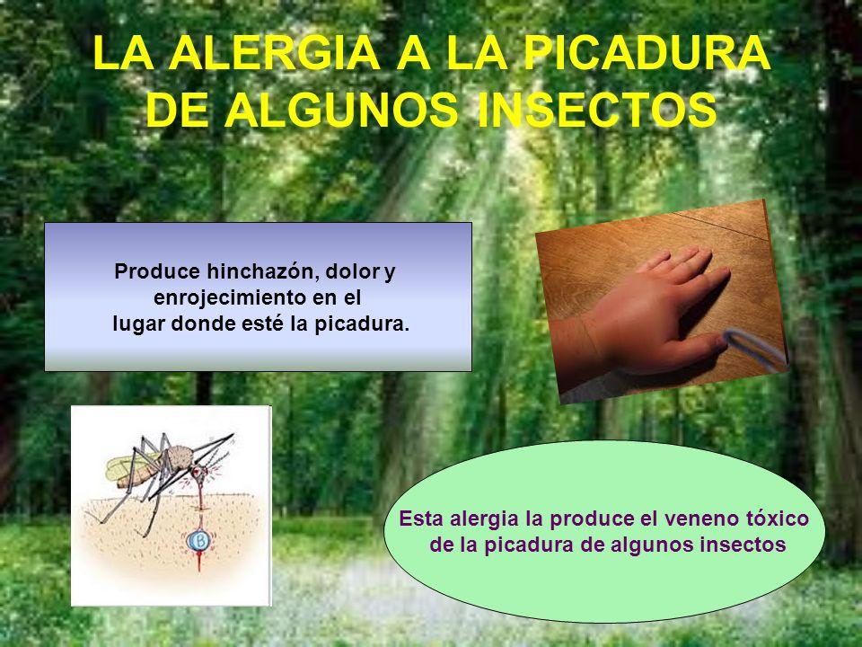 LA ALERGIA A LA PICADURA DE ALGUNOS INSECTOS Esta alergia la produce el veneno tóxico de la picadura de algunos insectos Produce hinchazón, dolor y enrojecimiento en el lugar donde esté la picadura.