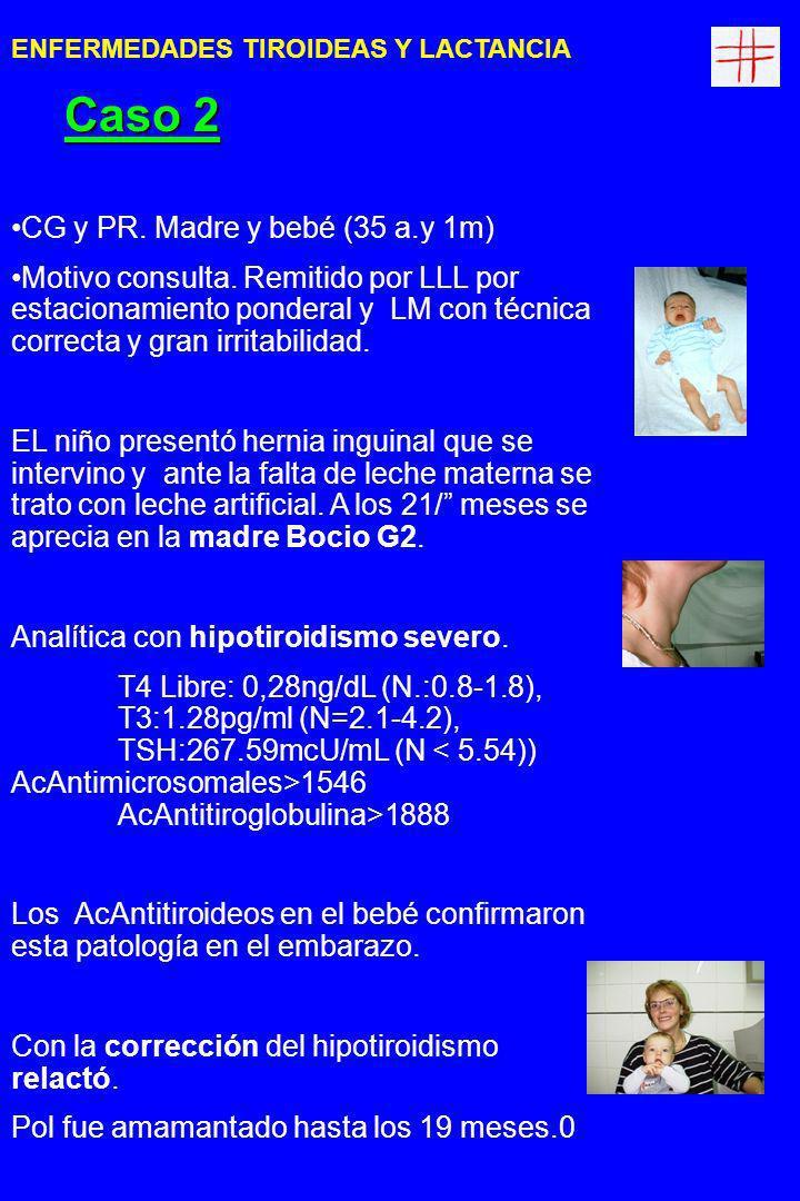 MH y MK.Madre/bebé (32a/8m). Motivo Consulta: Fatiga materna que atribuye a la lactancia.