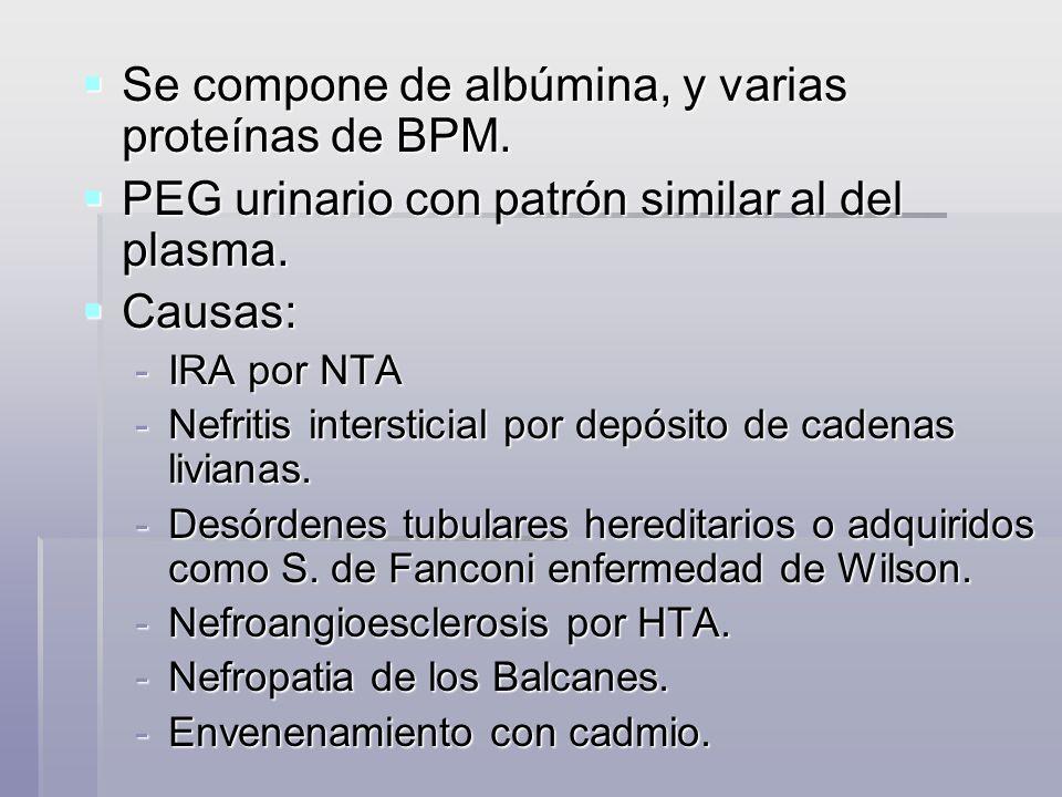 Se compone de albúmina, y varias proteínas de BPM. Se compone de albúmina, y varias proteínas de BPM. PEG urinario con patrón similar al del plasma. P