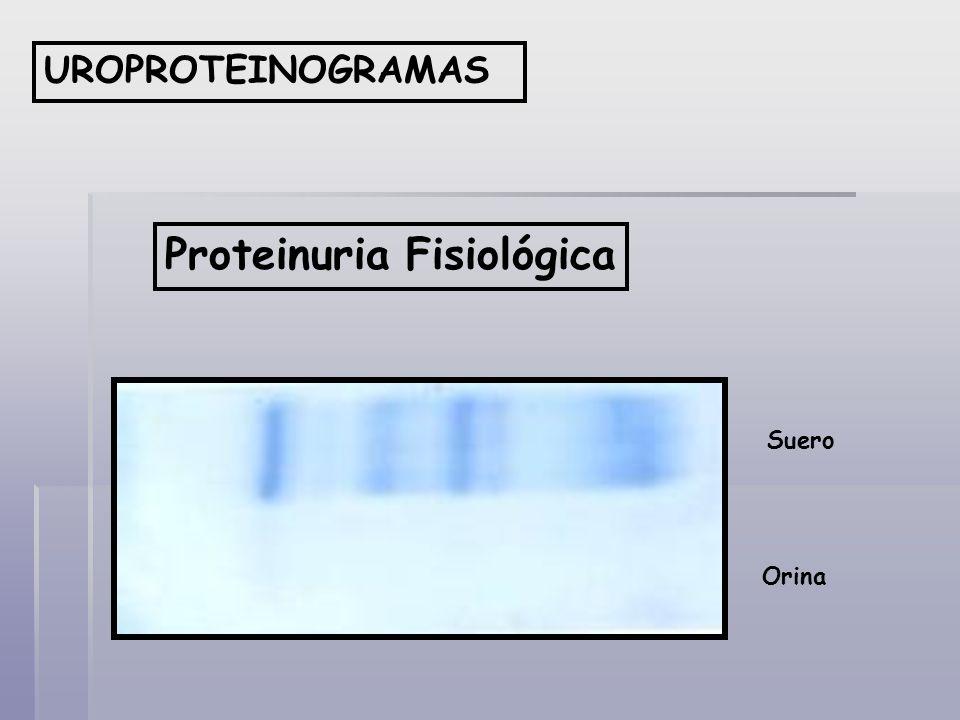 Proteinuria Fisiológica UROPROTEINOGRAMAS Suero Orina