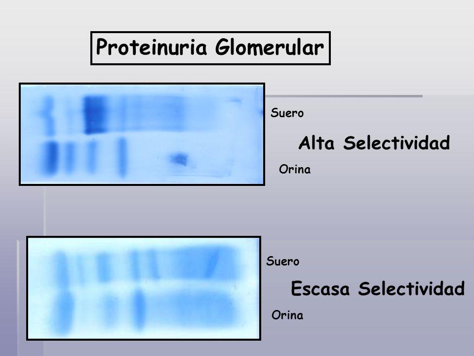 Proteinuria Glomerular Suero Alta Selectividad Orina Escasa Selectividad Orina