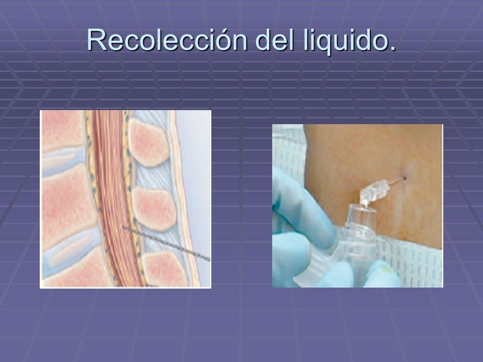 Recolección del liquido.
