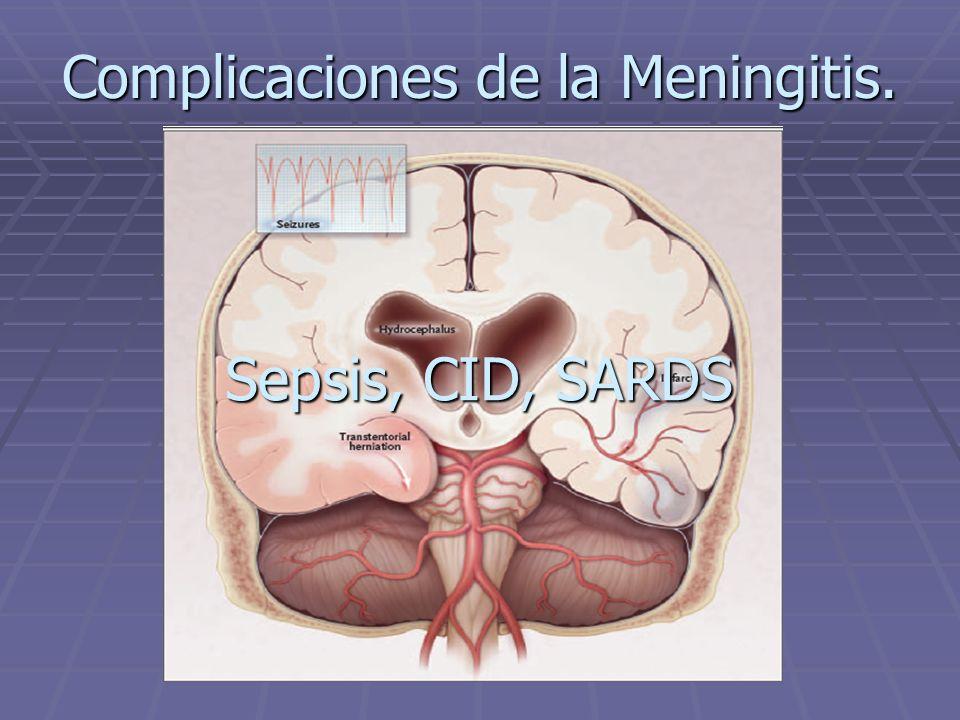 Complicaciones de la Meningitis. Sepsis, CID, SARDS