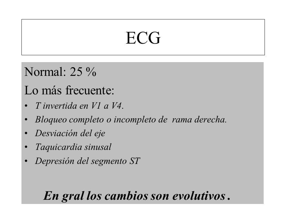 Normal: 25 % Lo más frecuente: T invertida en V1 a V4. Bloqueo completo o incompleto de rama derecha. Desviación del eje Taquicardia sinusal Depresión