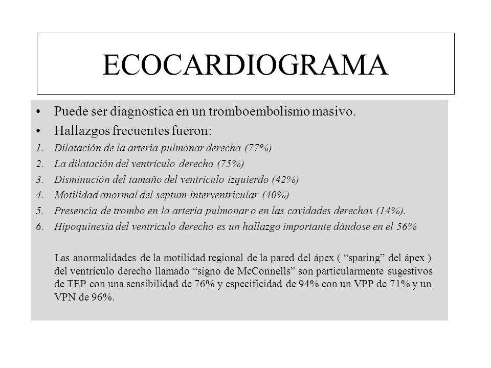 ECOCARDIOGRAMA Puede ser diagnostica en un tromboembolismo masivo. Hallazgos frecuentes fueron: 1.Dilatación de la arteria pulmonar derecha (77%) 2.La