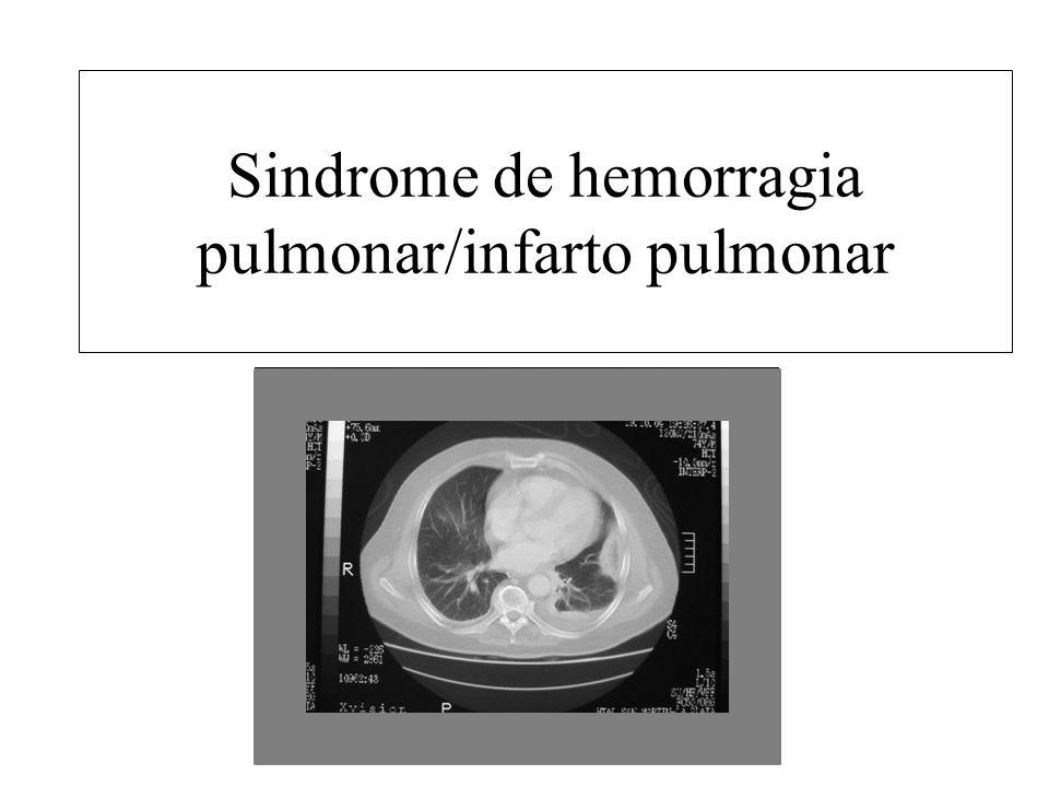 Sindrome de hemorragia pulmonar/infarto pulmonar