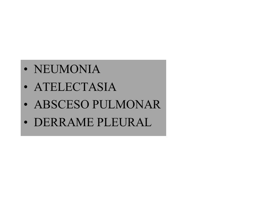 NEUMONIA ATELECTASIA ABSCESO PULMONAR DERRAME PLEURAL