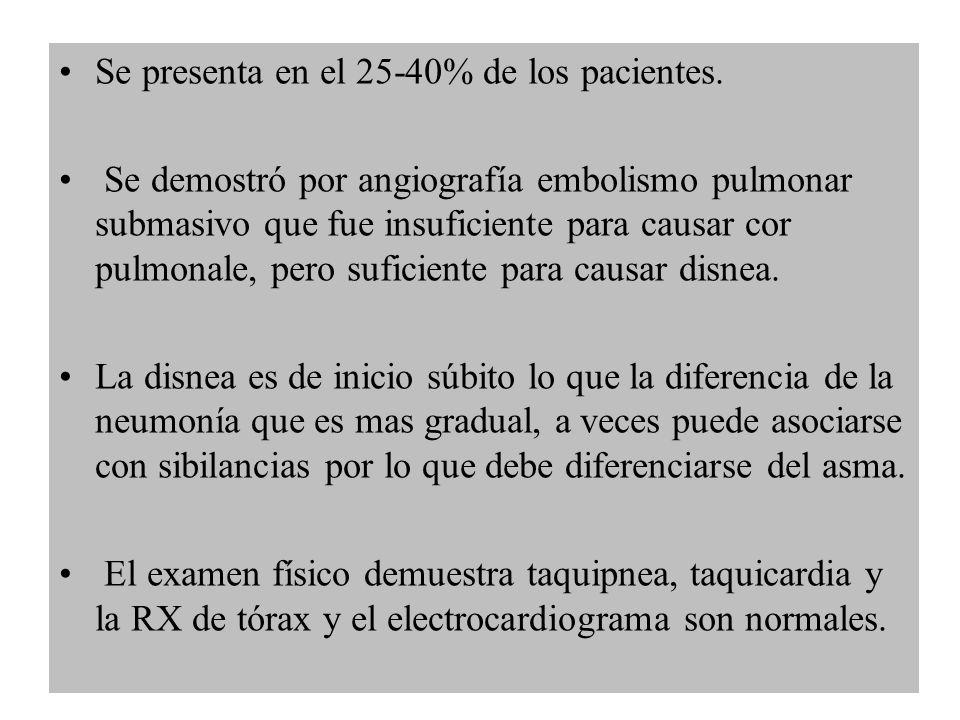 Se presenta en el 25-40% de los pacientes. Se demostró por angiografía embolismo pulmonar submasivo que fue insuficiente para causar cor pulmonale, pe