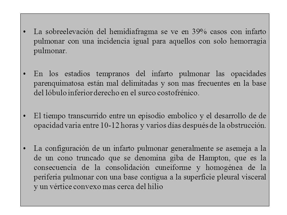 La sobreelevación del hemidiafragma se ve en 39% casos con infarto pulmonar con una incidencia igual para aquellos con solo hemorragia pulmonar. En lo