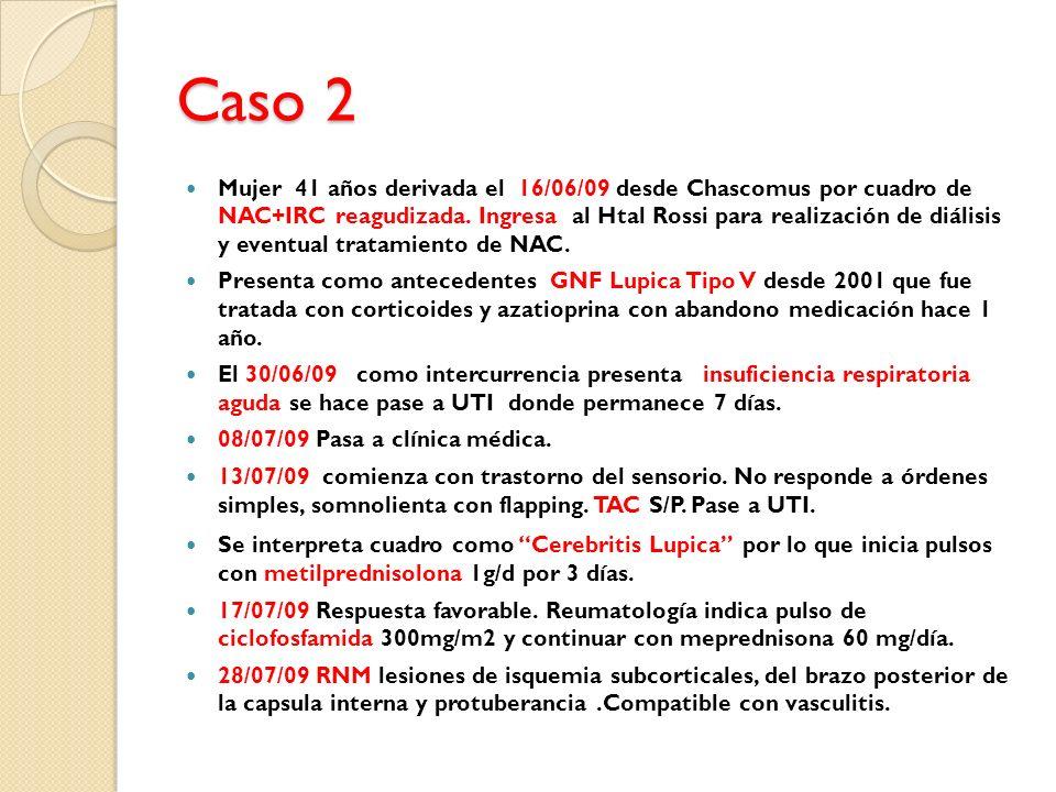Caso 2 Mujer 41 años derivada el 16/06/09 desde Chascomus por cuadro de NAC+IRC reagudizada. Ingresa al Htal Rossi para realización de diálisis y even