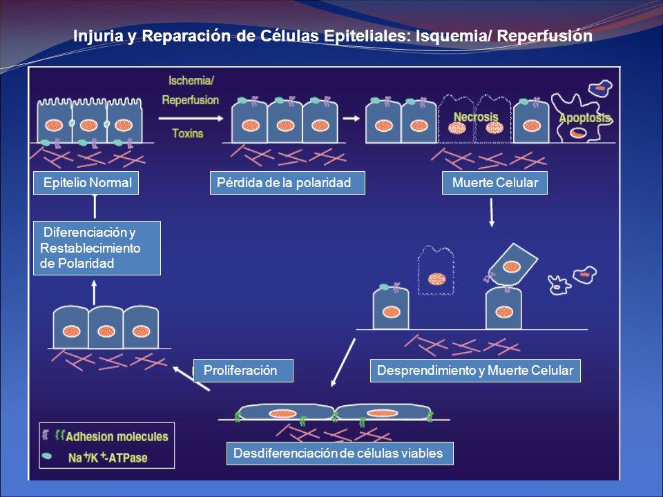 Injuria y Reparación de Células Epiteliales: Isquemia/ Reperfusión Desdiferenciación de células viables Desprendimiento y Muerte Celular Muerte Celula