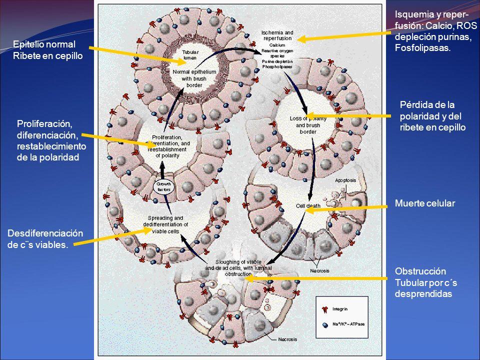 Epitelio normal Ribete en cepillo Pérdida de la polaridad y del ribete en cepillo Muerte celular Obstrucción Tubular por c´s desprendidas Desdiferenci