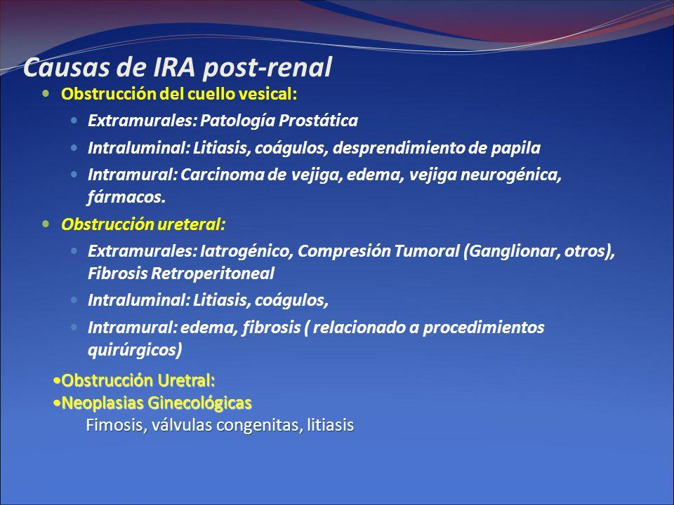 Causas de IRA post-renal Obstrucción del cuello vesical: Extramurales: Patología Prostática Intraluminal: Litiasis, coágulos, desprendimiento de papil