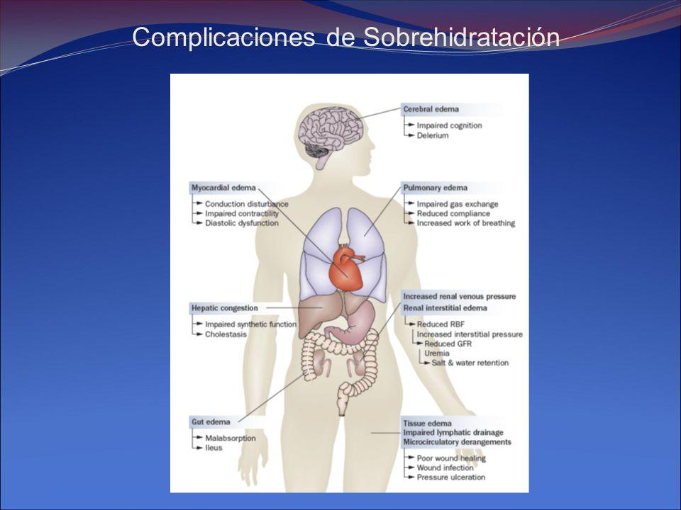 Complicaciones de Sobrehidratación