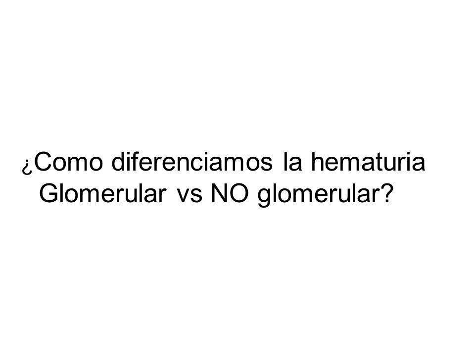 ¿ Como diferenciamos la hematuria Glomerular vs NO glomerular?
