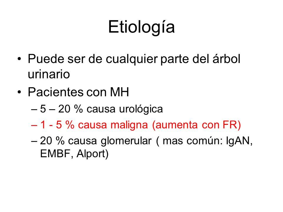 Etiología Puede ser de cualquier parte del árbol urinario Pacientes con MH –5 – 20 % causa urológica –1 - 5 % causa maligna (aumenta con FR) –20 % cau