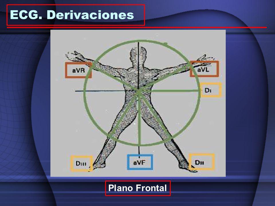 ECG. Derivaciones Plano Frontal