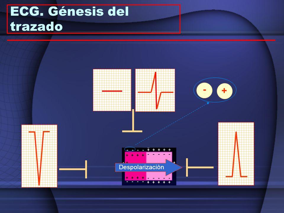 Despolarizaciòn - + ECG. Génesis del trazado