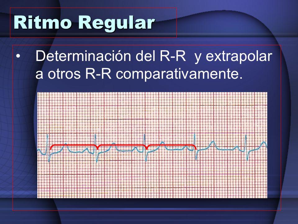 Ritmo Regular Determinación del R-R y extrapolar a otros R-R comparativamente.