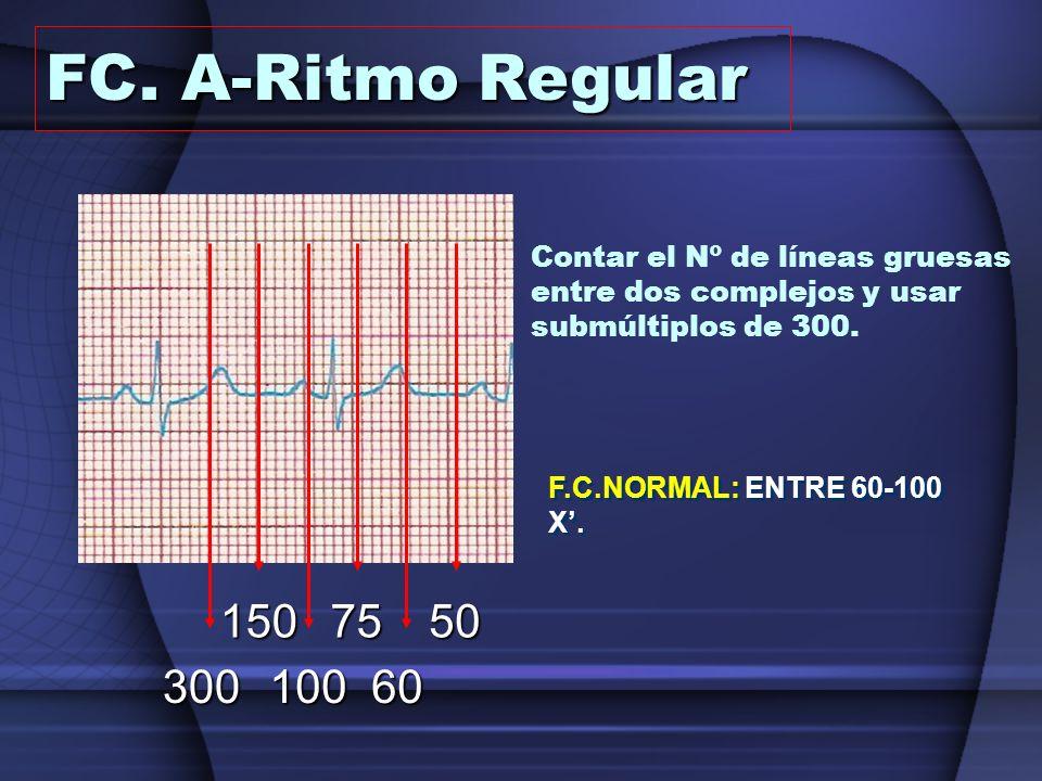 Contar el Nº de líneas gruesas entre dos complejos y usar submúltiplos de 300. 15075 10060300 50 F.C.NORMAL: ENTRE 60-100 X. FC. A-Ritmo Regular