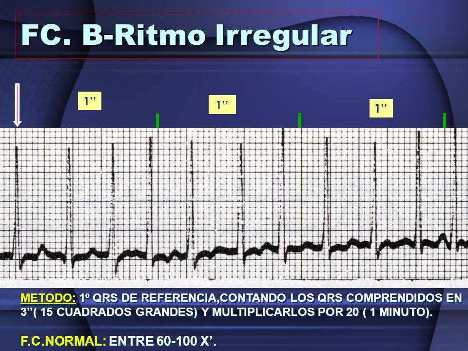 1 1 1 0.20 3 METODO: 1º QRS DE REFERENCIA,CONTANDO LOS QRS COMPRENDIDOS EN 3( 15 CUADRADOS GRANDES) Y MULTIPLICARLOS POR 20 ( 1 MINUTO). FC. B-Ritmo I