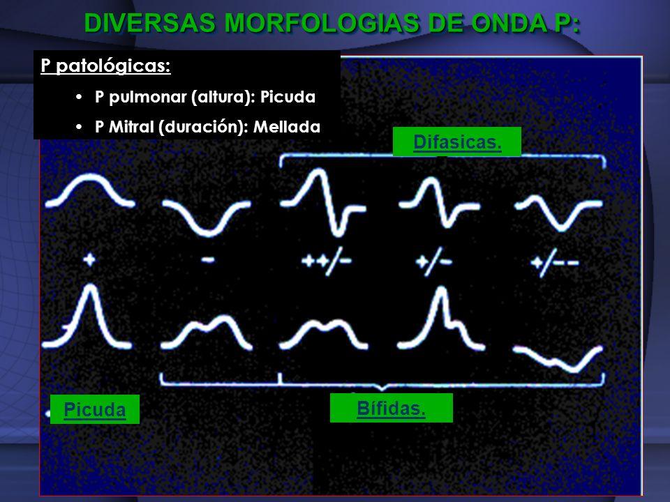 Picuda Bífidas. Difasicas. DIVERSAS MORFOLOGIAS DE ONDA P: P patológicas: P pulmonar (altura): Picuda P Mitral (duración): Mellada