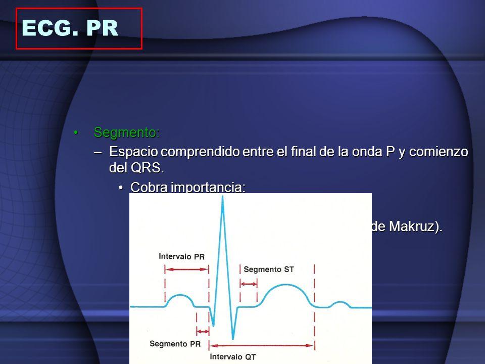 Segmento:Segmento: –Espacio comprendido entre el final de la onda P y comienzo del QRS. Cobra importancia:Cobra importancia: Isoeléctrica p/ comparar