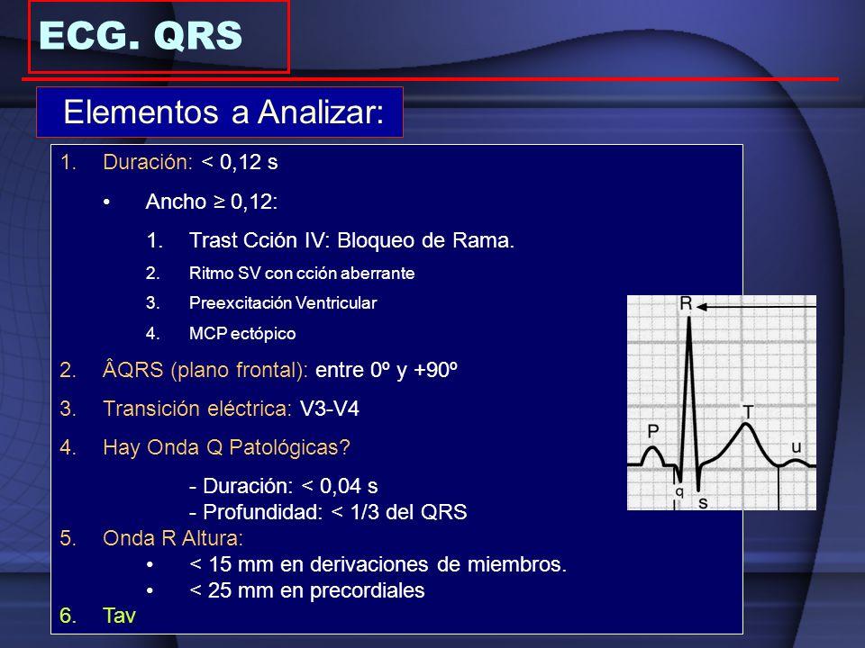 Elementos a Analizar: 1.Duración: < 0,12 s Ancho 0,12: 1.Trast Cción IV: Bloqueo de Rama. 2.Ritmo SV con cción aberrante 3.Preexcitación Ventricular 4