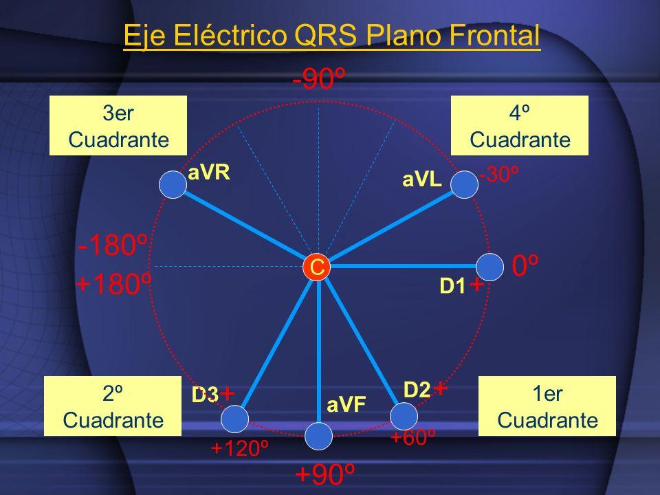 aVR aVL aVF D1 D2 D3 + + + C 0º +90º -180º +180º -90º 1er Cuadrante 2º Cuadrante 3er Cuadrante 4º Cuadrante +60º -30º +120º Eje Eléctrico QRS Plano Fr